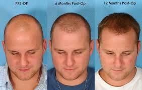 ay ay saç ekimi resimleri