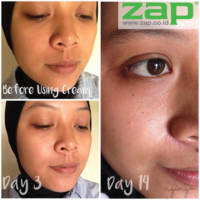 Hasil perawatan rutin di ZAP