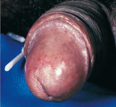Balanitis due to C. albicans in the uncircumcised partner of a woman with VVC