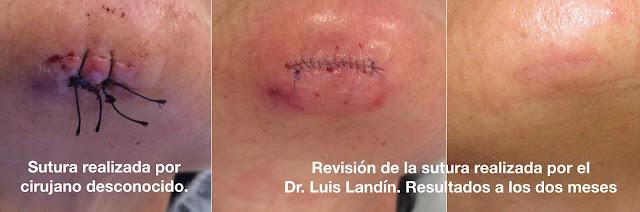 Las suturas de seda de la izquierda dejan mucha marca en la piel y producen inflamación. En esta paciente hemos recambiado esa sutura por una mucho más fina, de polipropileno 7/0 y hemos afrontado mejor los bordes. A la derecha el resultado después de dos meses de la intervención.