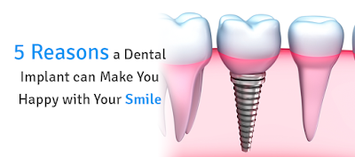 5 Reasons a Dental Implant can make you happy with Your Smile