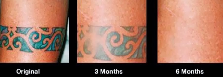 Before and After Photos of Tattoo Removal Cream