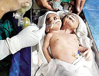 two heads and one body child born in maharasta
