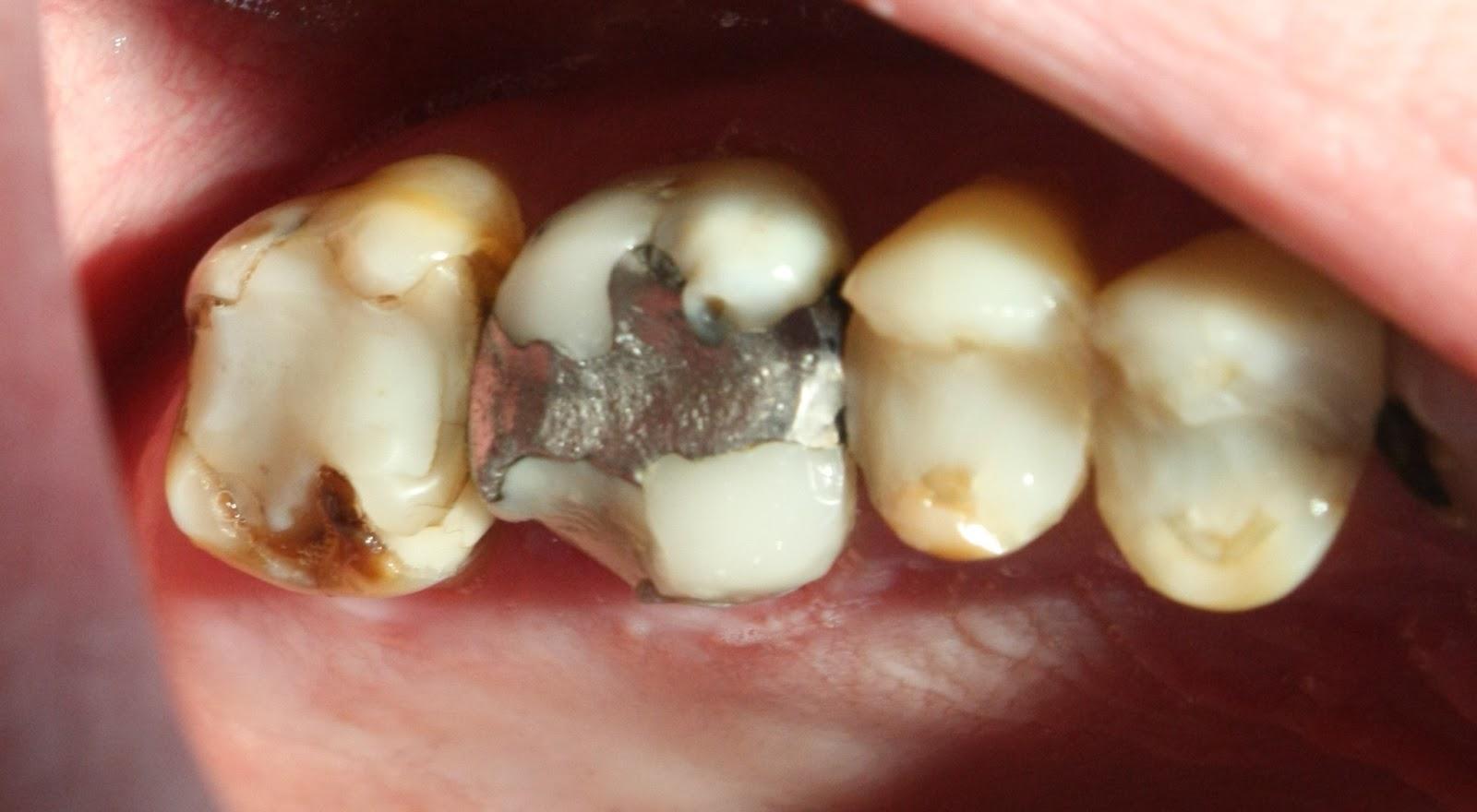 hammaslääkärillä huonot hampaat