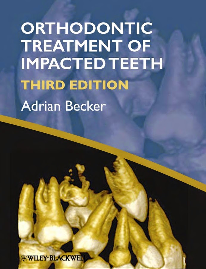 The Orthodontic Treatment Of Impacted Teeth  - ADRIAN BECKER - 3rd.ed © 2012.PDF