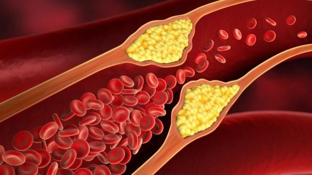 obat penyempitan pembuluh darah di apotik