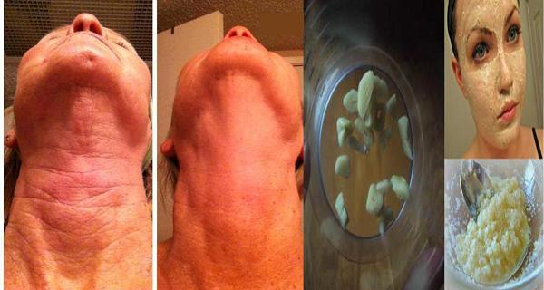 scapa de riduri cu usturoi
