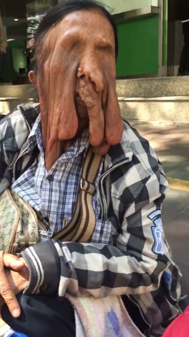 Graphic Photos: See The Woman Whose Face Is Currently 'Melting' Because Of A Rare Condition