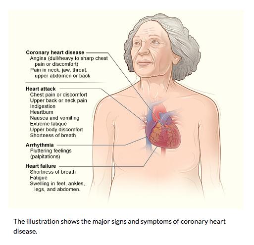 Ciri-Ciri dan Gejala Penyakit Jantung Pada Wanita
