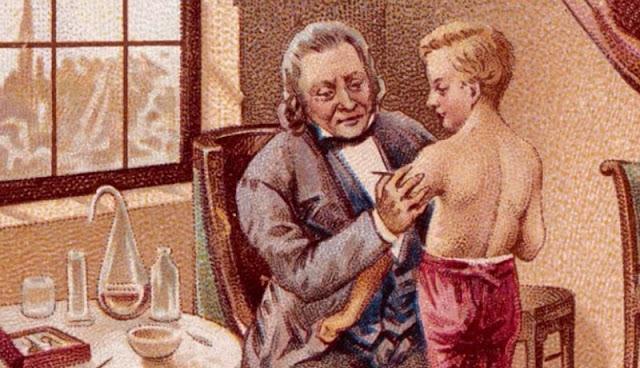 Percobaan vaksin Edwart Jenner kepada Phipps yang pernah dilakukannya