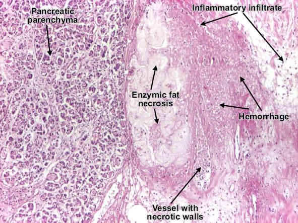 موقع الدكتور أحمد كلحى: صور باثولوجى - Patholgy Slides ...