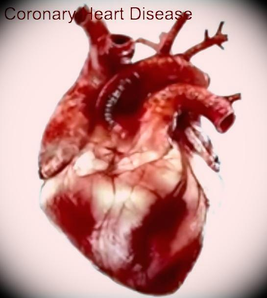 Coronary Heart Disease Symptoms and Prevention