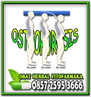 osteoporosis, tulang keropos, patah tulang, obat herbal osteoporosis