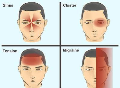 10 Helpful Remedies To Relieve Headache Pain And Tension