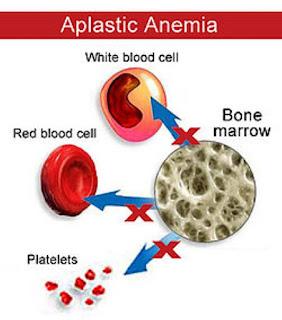 ubat anemia