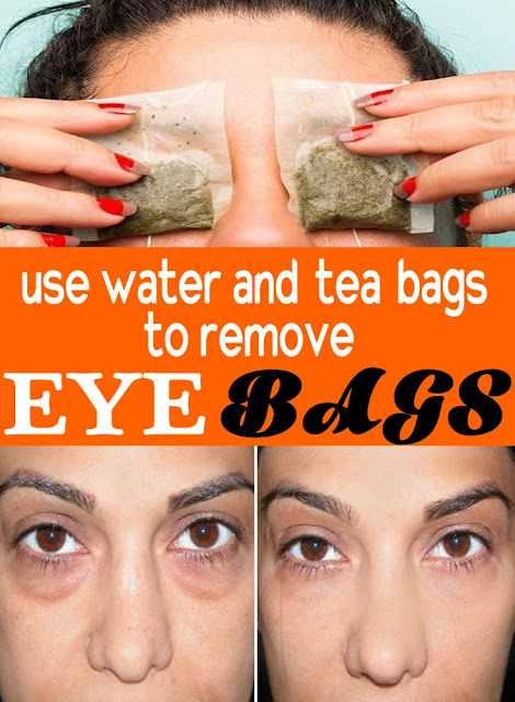 get-rid-of-eyebags