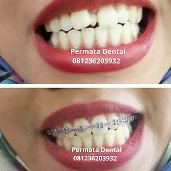 Ahli Gigi Bali Permata Dental Behel Barcket Kawat Gigi Perawatan