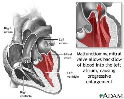 Mitral Valve Prolapse Treatment and Prevention - Booboone.com