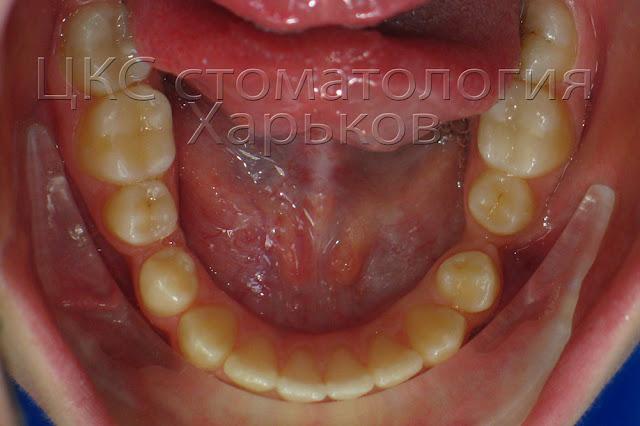 Нижний зубной ряд пациента с прогнатией.