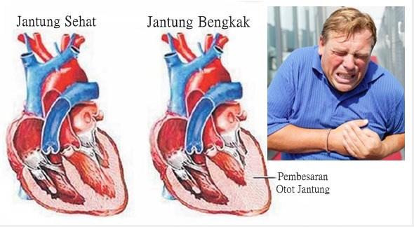 cara mengatasi pembengkakan jantung