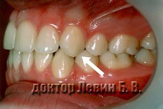 устойчивый ортодонтический результат