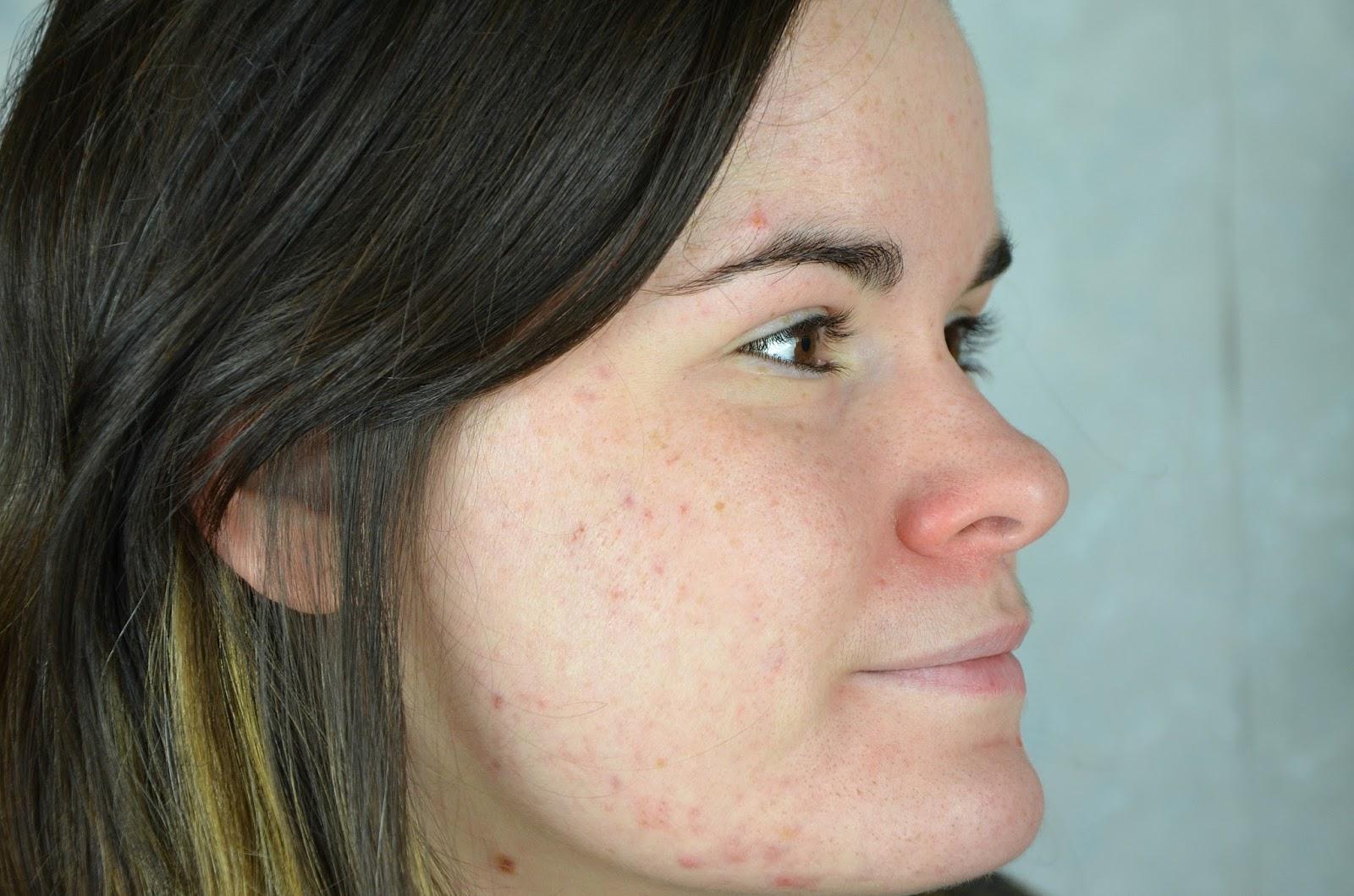 acné joue droite