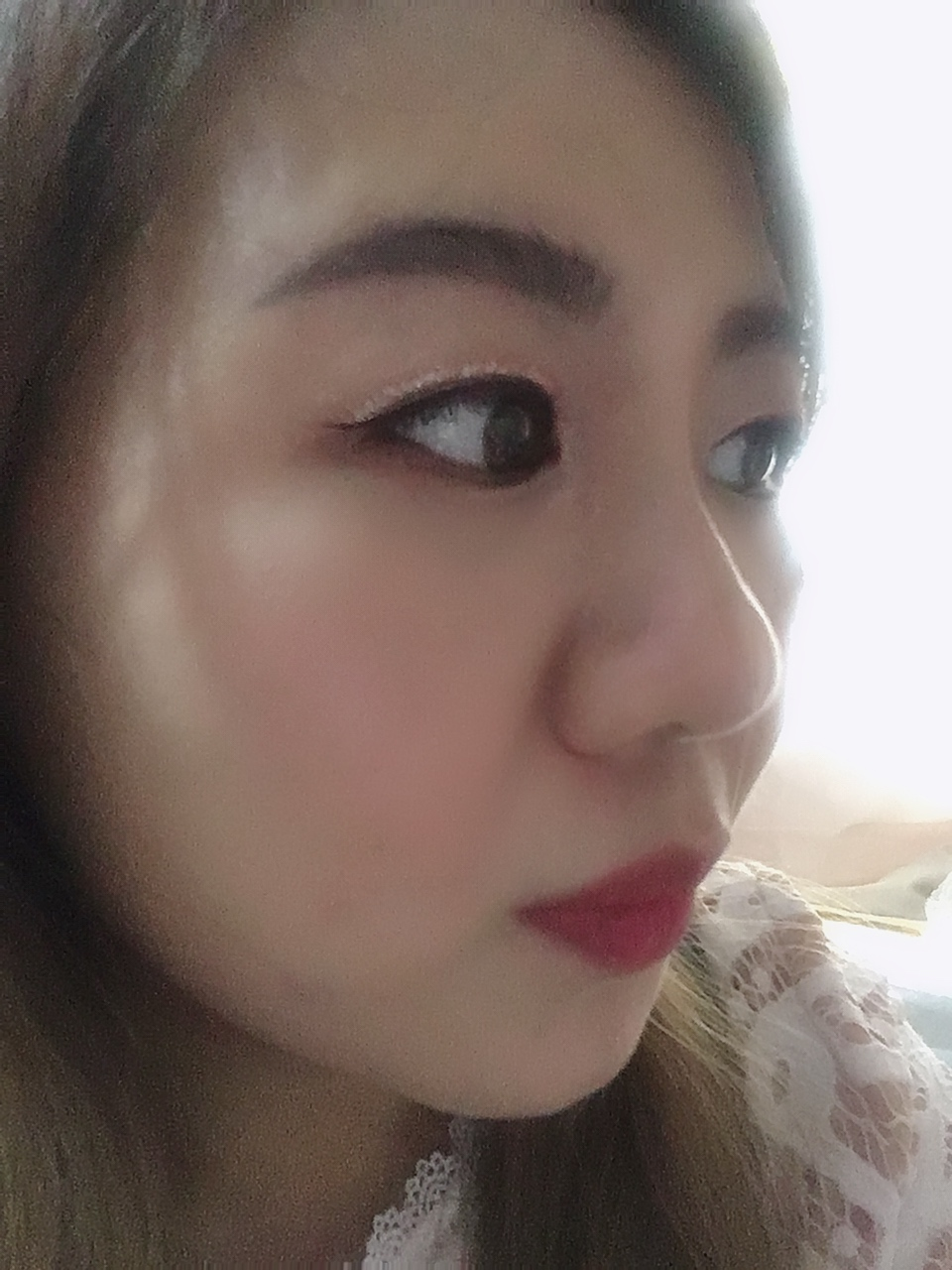 Jessica Ang |: Review: SL Clinic Singapore | Nose Threadlift Treatment