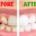 How To Remove Dental Plaque In 5 Minutes Naturally, Without Going To The Dentist