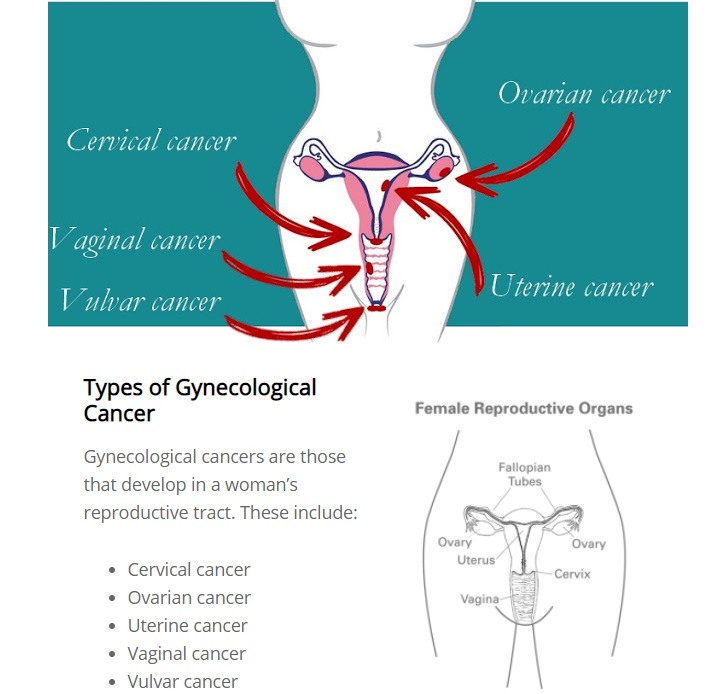 Gynecological Cancer Awareness Month: What You Need To Know!