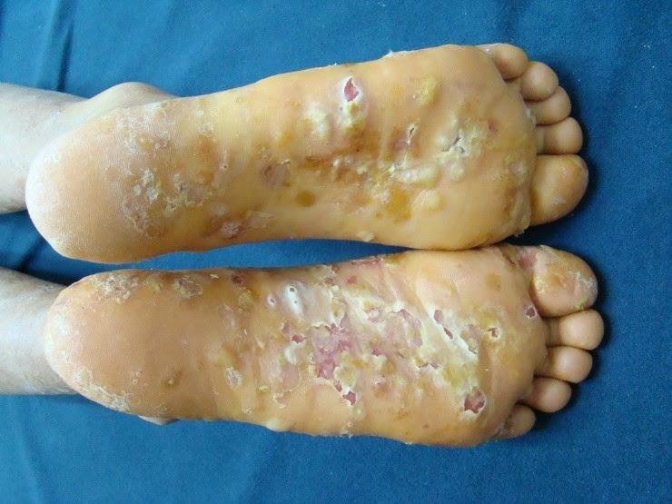 Glue Rubber Sole Tennis Shoe