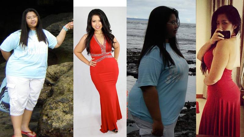 Dampak Buruk Obesitas Terhadap Kesehatan Wanita