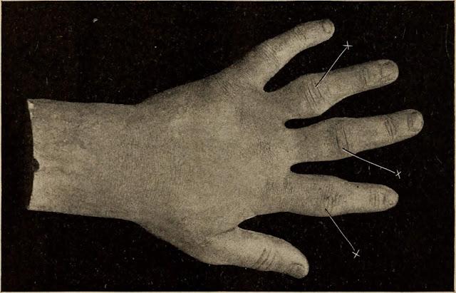 गोनोकोकल आइटिस [ Gonococcul orthritis ] रोग के लक्षण , निदान , चिकित्सा , ? Gonococcal items [Gonococcul orthritis] symptoms of the disease, diagnosis, therapy,?