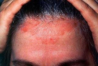 obat kulit kepala kering dan bersisik serta Mengelupas