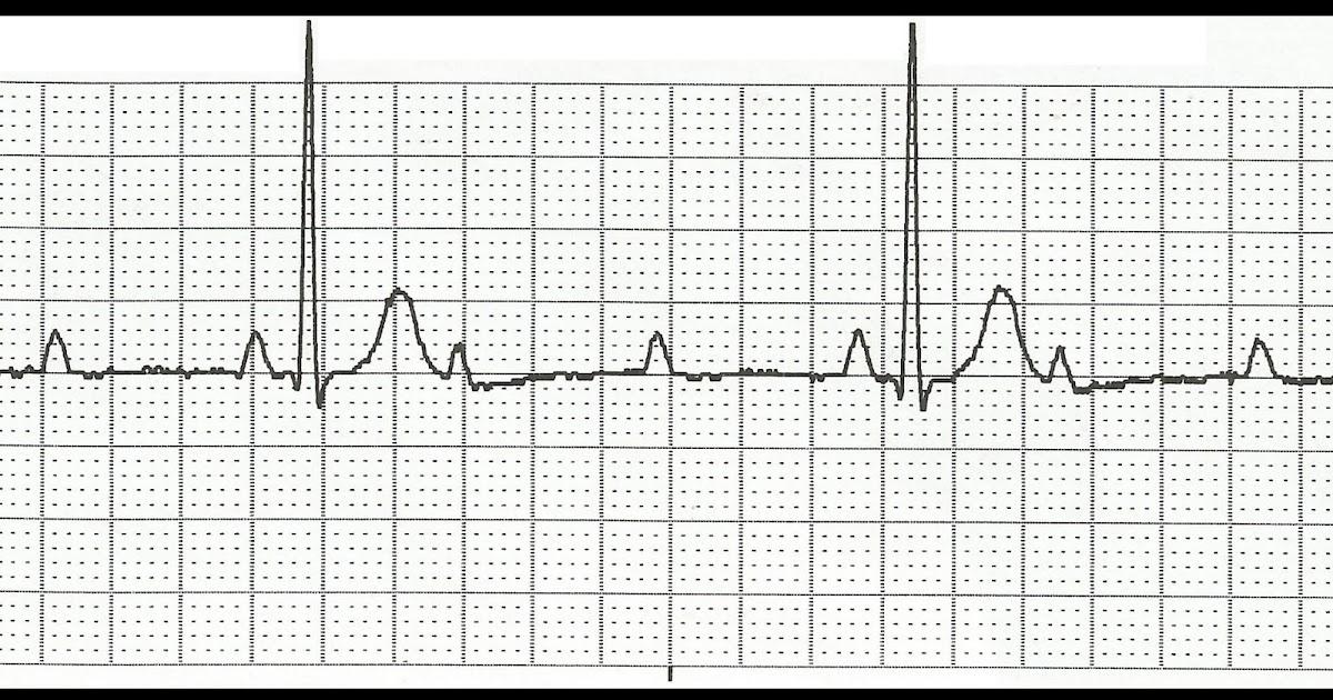 Float Nurse: EKG Rhythm Strip Quiz 127