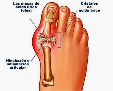 acido urico gota en la rodilla