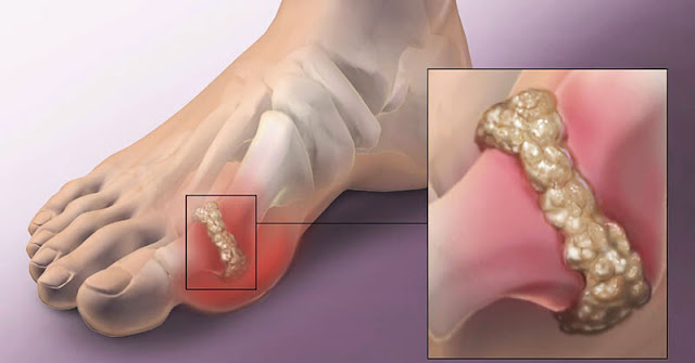 How To Remove Gout and Joint Pain (Uric Acid and Crystals)