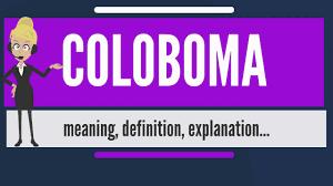 coloboma-www.healthnote25.com