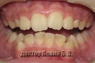 Ортодонтическая патология сформированная в результате сохранения инфантильного типа глотания, фотография.