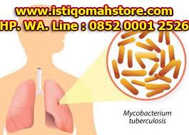 Obat TBC Tradisional Ampuh Paling Aman dan Tanpa Efeksamping
