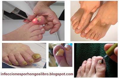 Los tipos del hongo de los pie y los métodos de su tratamiento