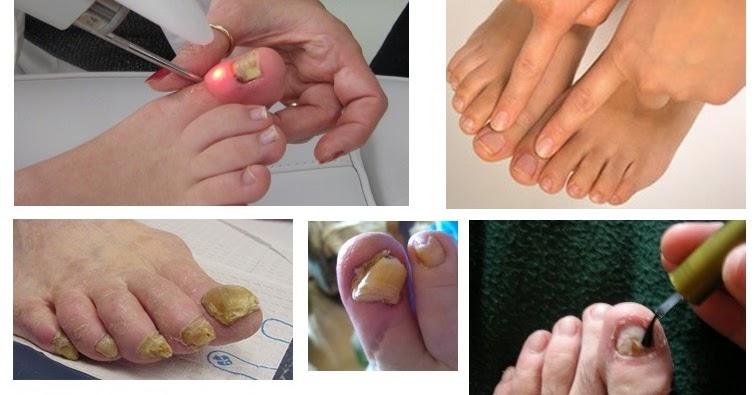 El medio del hongo de las uñas top 5