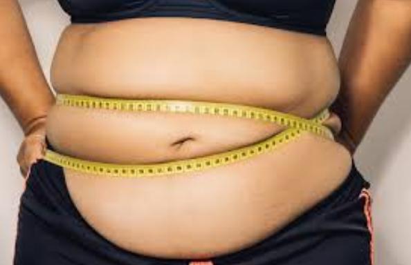 Gaya hidup dan Pengobatan Obesitas