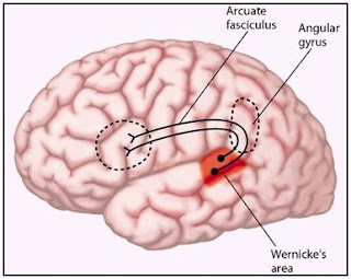 Conduction Aphasia Definition, Symptoms, Causes, Treatment