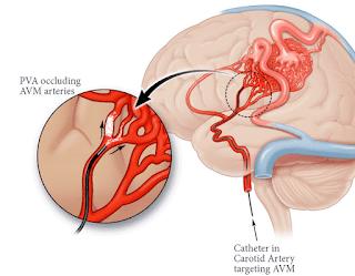 Suplemen Alami Untuk Mengatasi Pembuluh Darah Otak Tersumbat