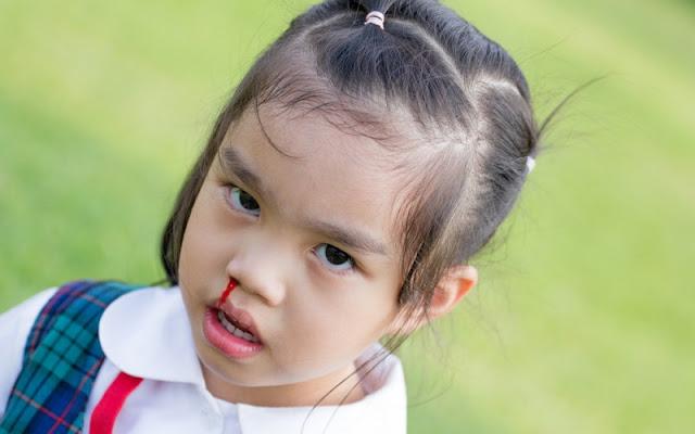 Penyebab Mimisan pada Anak saat Tidur