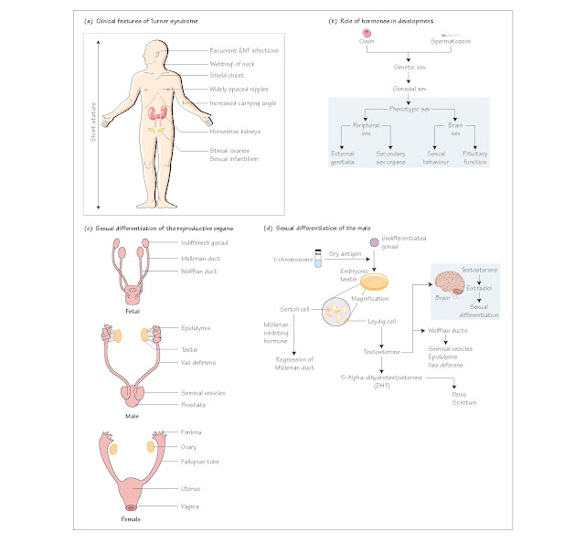Sexual Differentiation and Development: I Introduction, Clinical scenario, Genetic sex, Gonadal sex, Phenotypic sex: secondary sexual characteristics, Ductal differentiation, External genitalia,