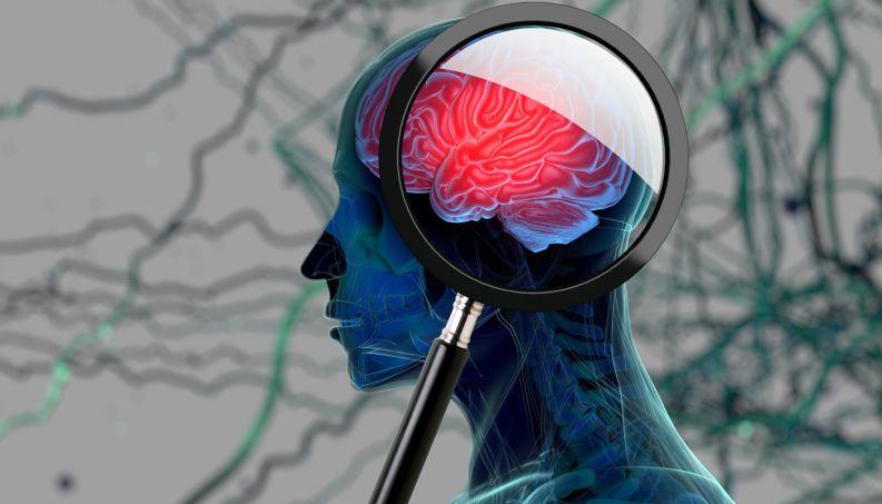 Lúpus e saúde mental: um novo estudo descobre que a doença duplica o risco de demência, independentemente da idade
