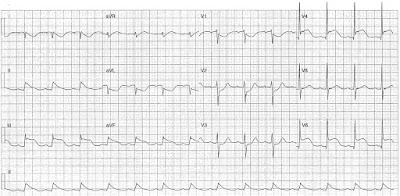 ECG of the Week - 6th July 2015