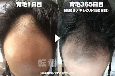 育毛一周年の頭皮