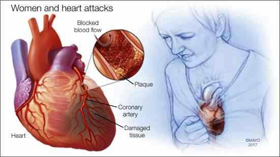 Heart Attacks More Likely to be Fatal in Women and Rates are Rising